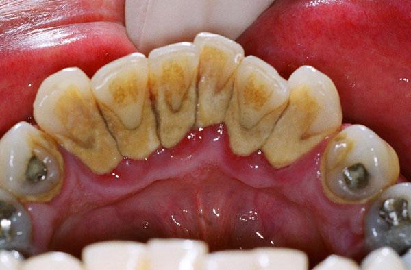 111 رفع بوی بد دهان و همه عوامل ایجاد آن درمان در دندان پزشکی