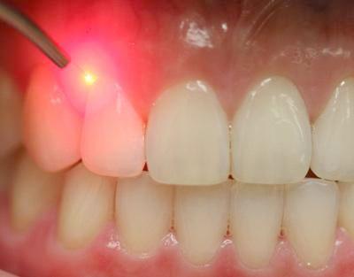131 رفع بوی بد دهان و همه عوامل ایجاد آن درمان در دندان پزشکی