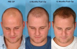 do hair transplants work 7125 Optimized 300x193 کاشت مو