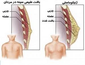 Optimized 244711729421523186661281531412035410191166 300x231 معضل سینه ی زنانه در مردان
