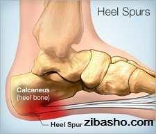 375x321 heel spur درد پاشنه؛خارپاشنه