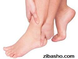 Optimized heel pain2 درمان خانگی ترک پا