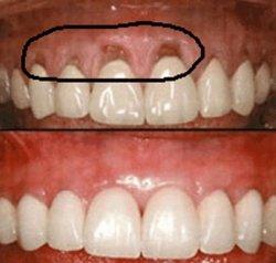 8 رفع بوی بد دهان و همه عوامل ایجاد آن درمان در دندان پزشکی