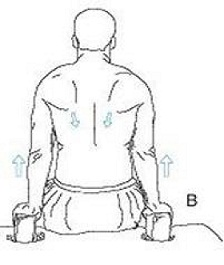 s 6 درمان قوز پشت